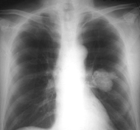 What Causes Lung Nodules