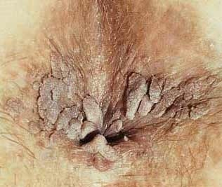 Anal warts left untreated