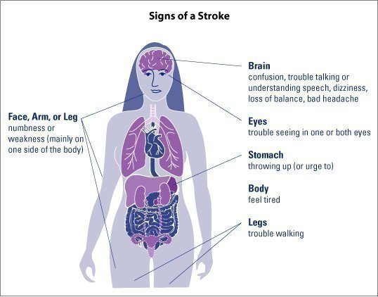 Stroke Natural Remedies
