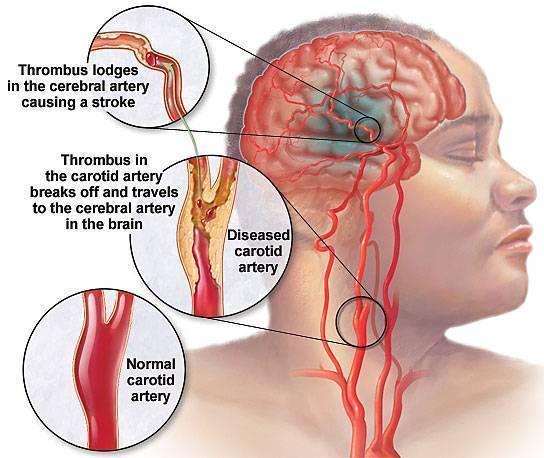 champix and migraine headaches