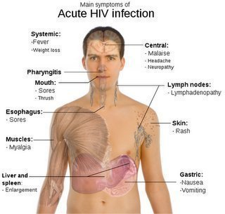 HIV AIDS Facts: Symptoms and Treatments - OnHealth