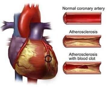 heart attack how to tell which artery is affected