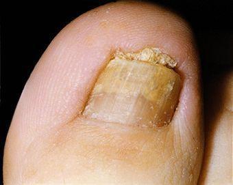 Treatment For Toenail Fungus